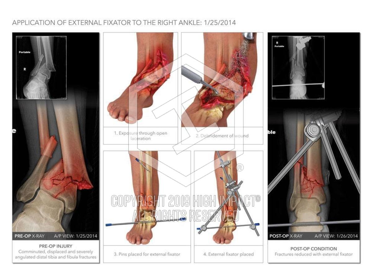 $2 4M Verdict: Illustrating Ankle Fractures After Drunk