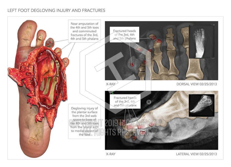 Degloving Injury To The Foot High Impact Visual Litigation Strategies