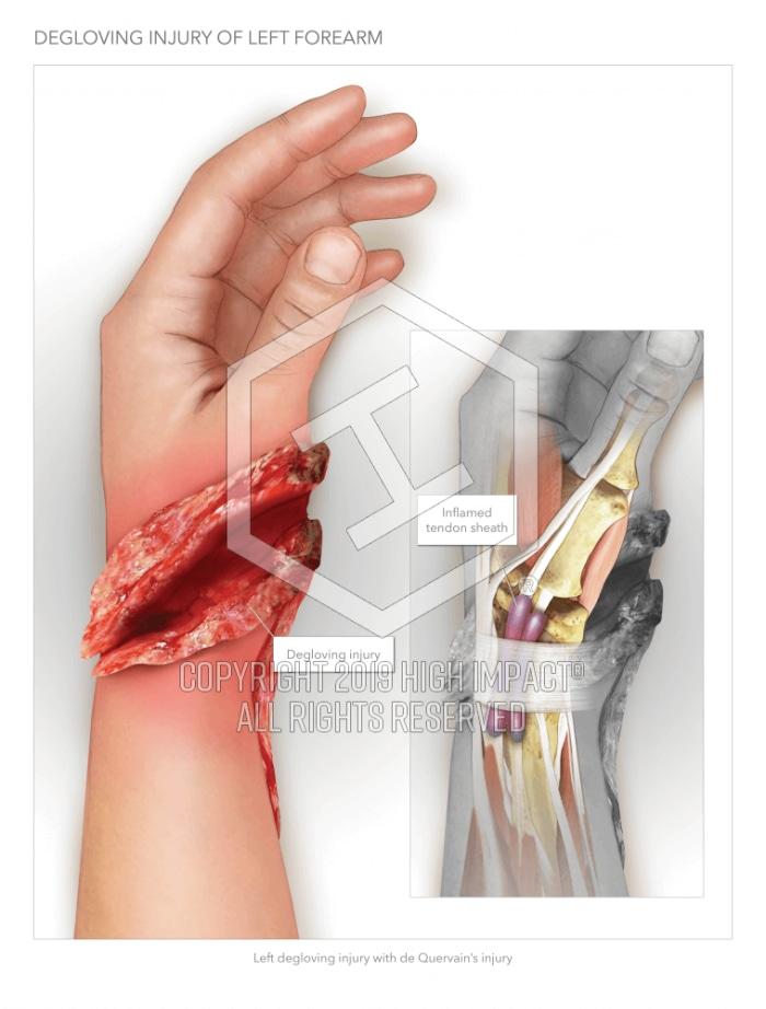 Forearm Degloving Injury High Impact Visual Litigation Strategies