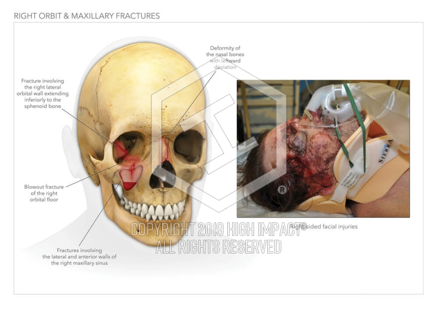 Orbital and Maxillary Fractures | High