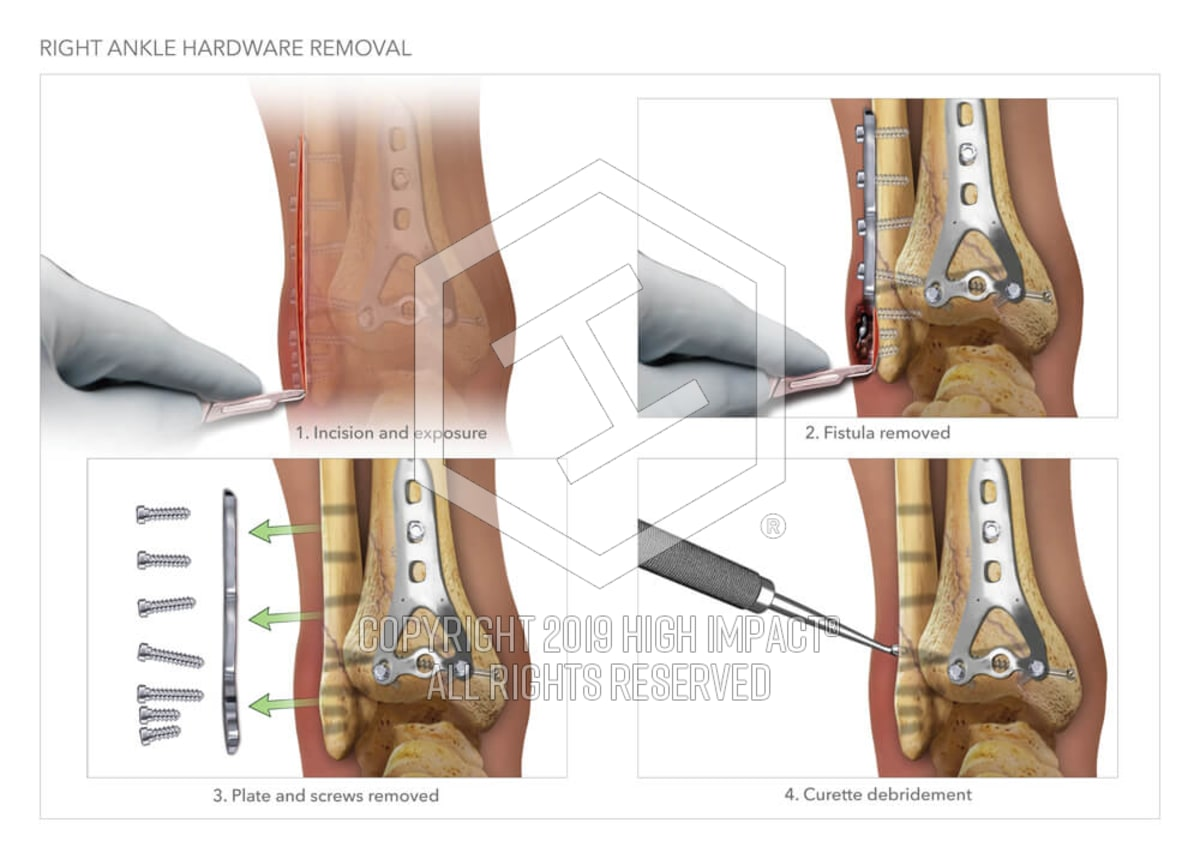 Right Ankle Hardware Removal | High Impact® Visual