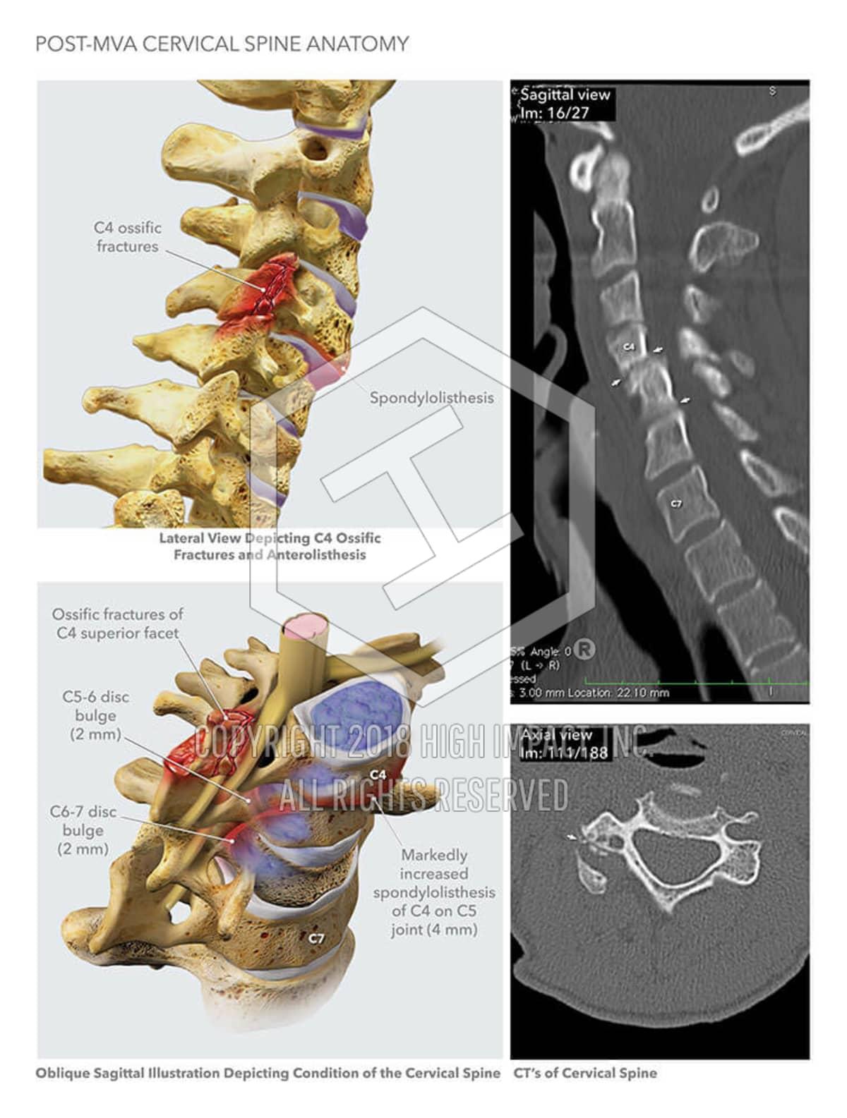 Post-MVA Cervical Spine Anatomy | High Impact® Visual