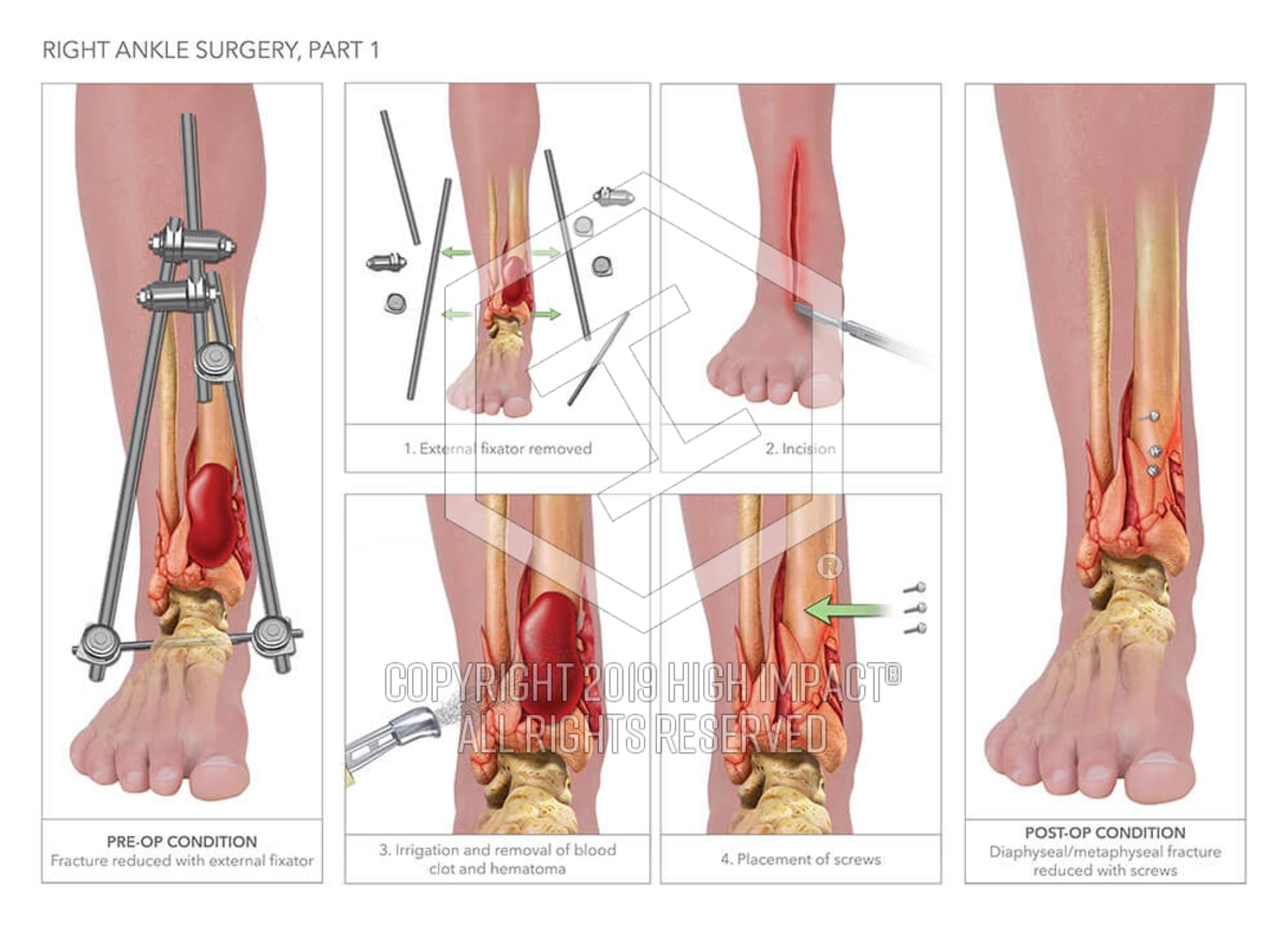 Right Ankle Surgery | High Impact® Visual Litigation Strategies™