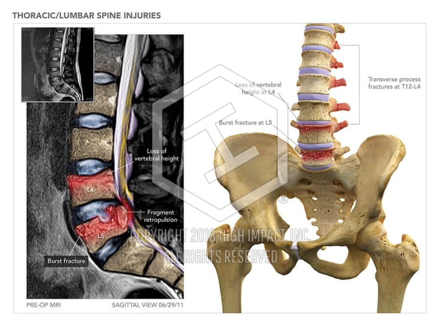Thoraciclumbar Spine Injuries High Impact Visual Litigation