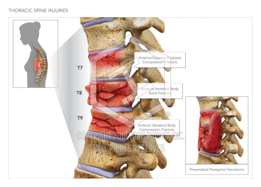 Thoracic Spine Injuries High Impact Visual Litigation Strategies