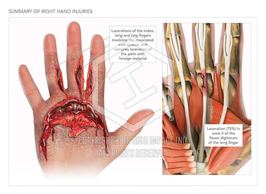 Summary Of Right Hand Injuries High Impact Visual Litigation