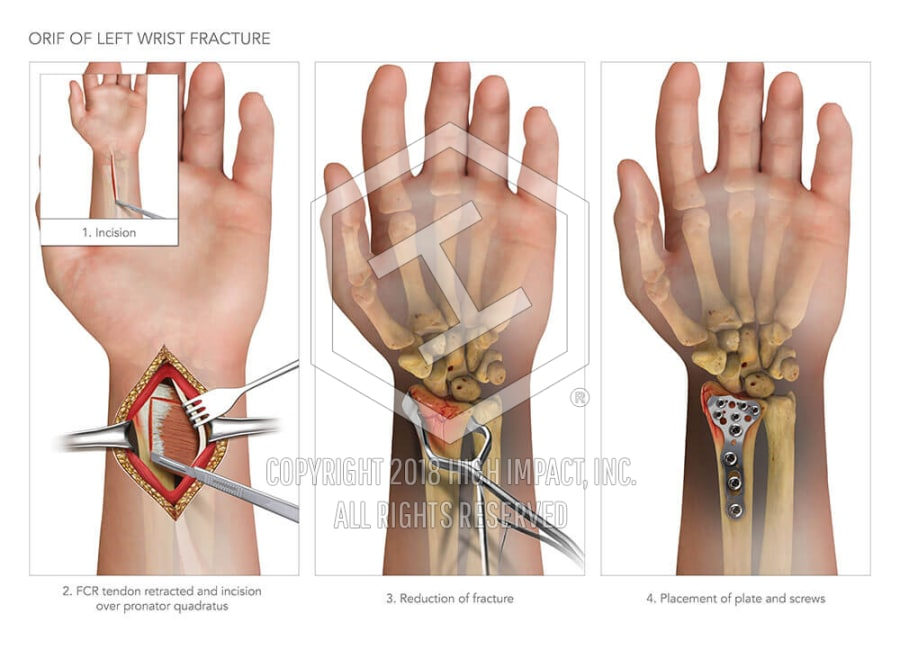 ORIF Of Left Wrist Fracture High Impact Visual Litigation Strategies