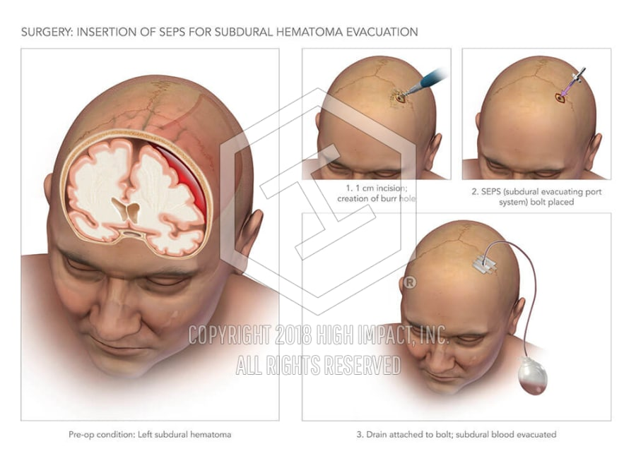 Subdural Hematoma Evacuation | High Impact® Visual Litigation ...