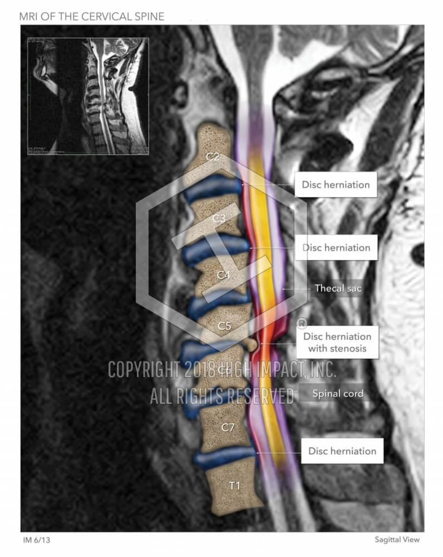 Cervical Herniated Disc Mri High Impact Visual Litigation Strategies