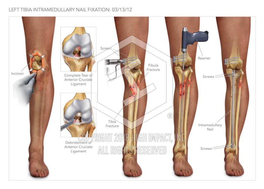 Tibia Intramedullary Nail Fixation   High Impact® Visual Litigation ...