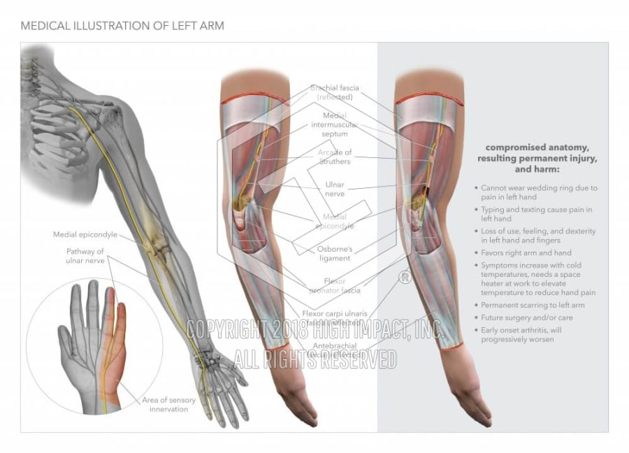 Medical Illustration Of Left Arm High Impact Visual Litigation