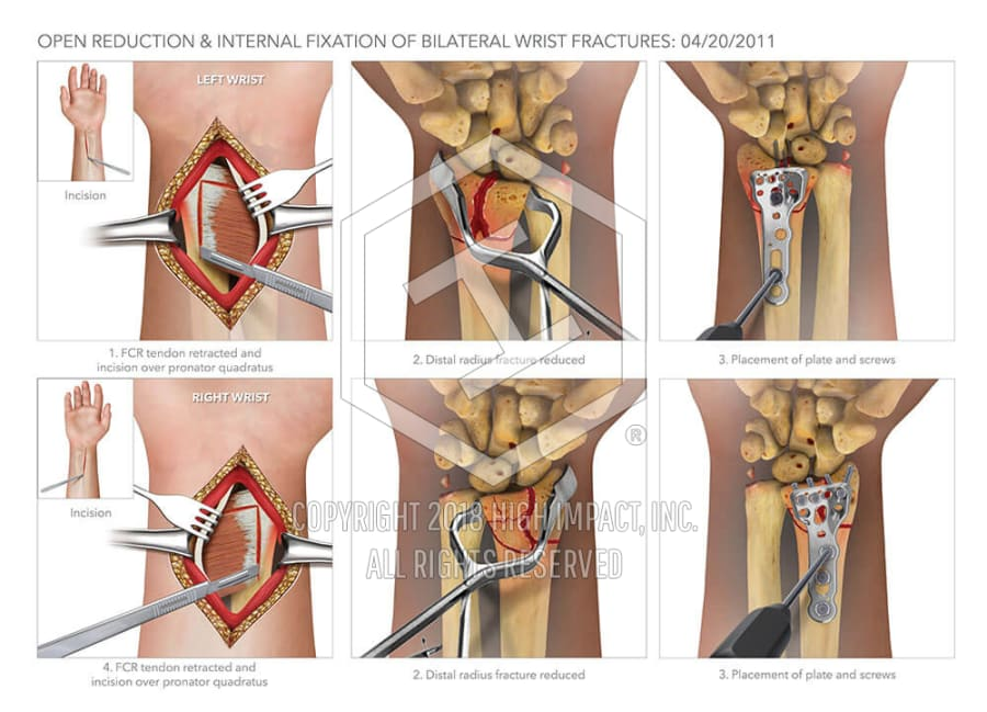 Open Reduction Internal Fixation Of Bilateral Wrist Fractures