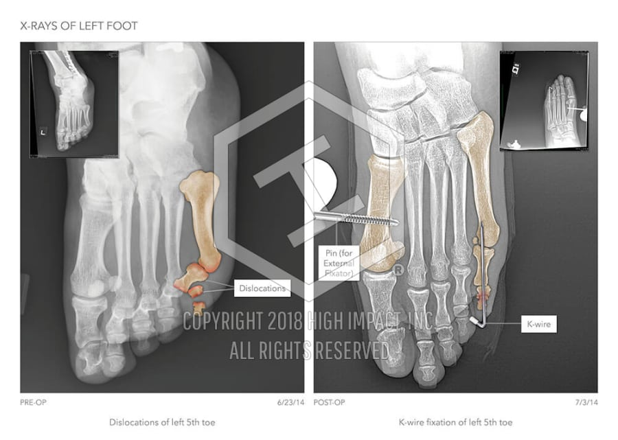 X-Rays of Left Foot | High Impact® Visual Litigation Strategies™