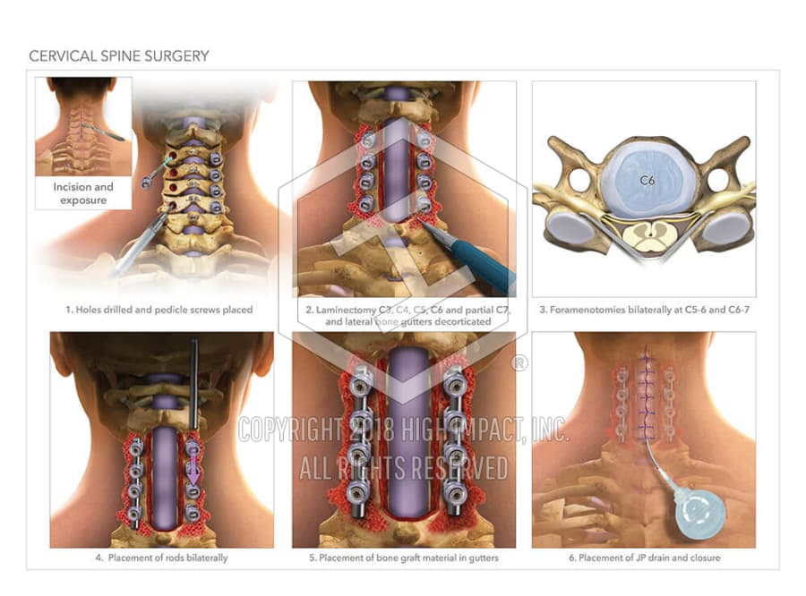 Cervical Spine Surgery High Impact Visual Litigation Strategies
