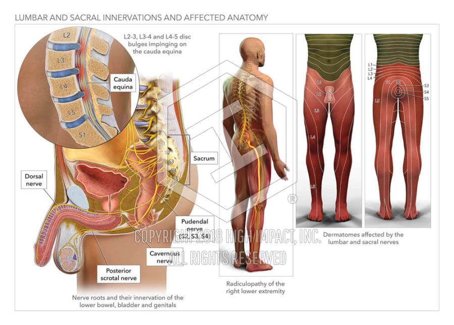Lumbar and Sacral Innervations and Affected Anatomy | High Impact ...