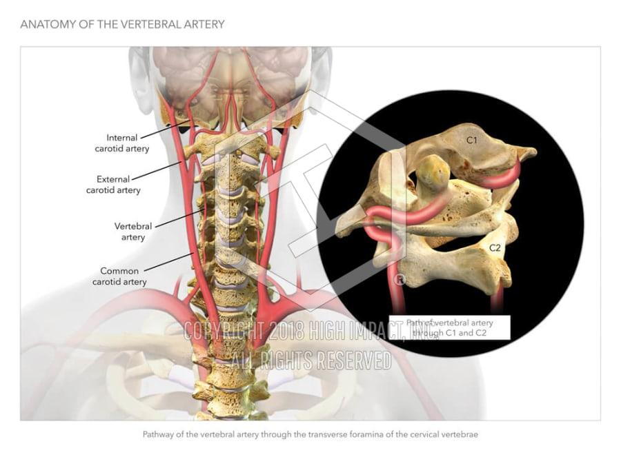 Anatomy of the Vertebral Artery | High Impact® Visual Litigation ...