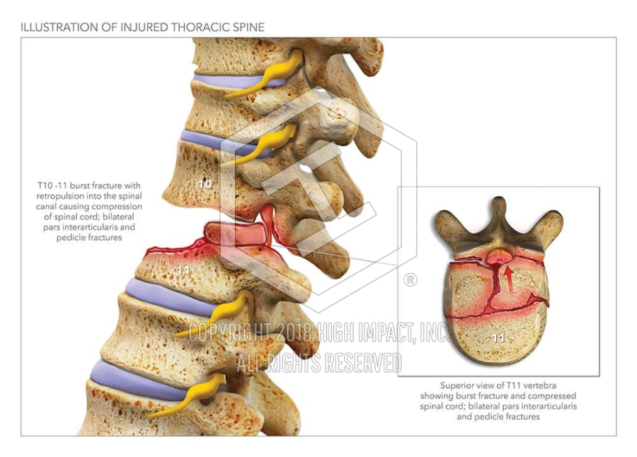 Illustration Of Injured Thoracic Spine High Impact Visual
