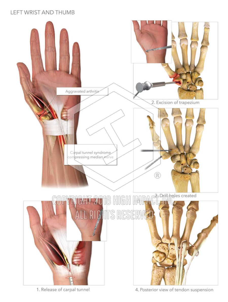 Left Wrist And Thumb High Impact Visual Litigation Strategies