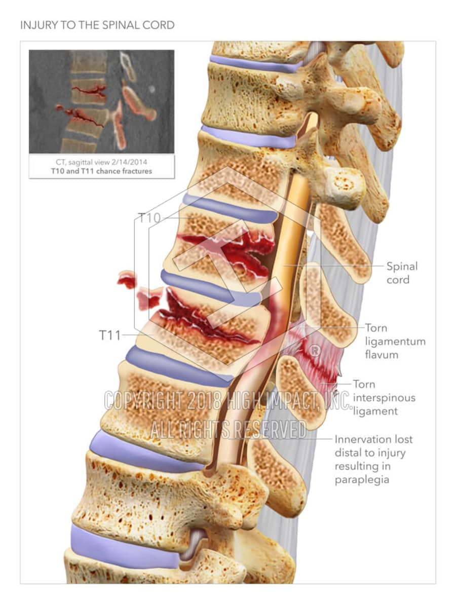 Injury to the Spinal Cord | High Impact® Visual Litigation Strategies™