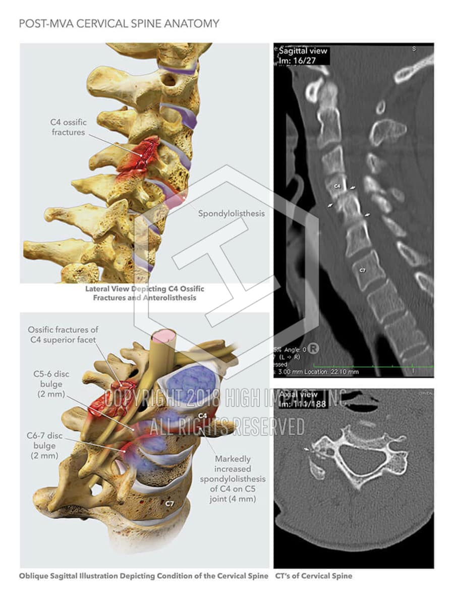 Post-MVA Cervical Spine Anatomy | High Impact® Visual Litigation ...