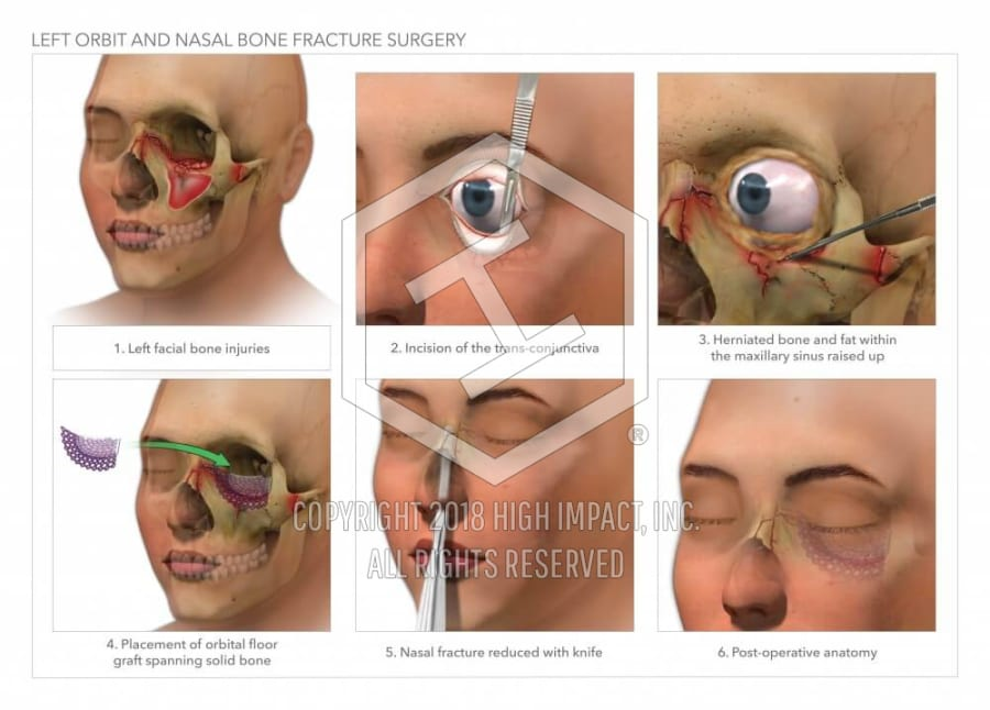 Left Orbit and Nasal Bone Fracture Surgery | High Impact® Visual ...