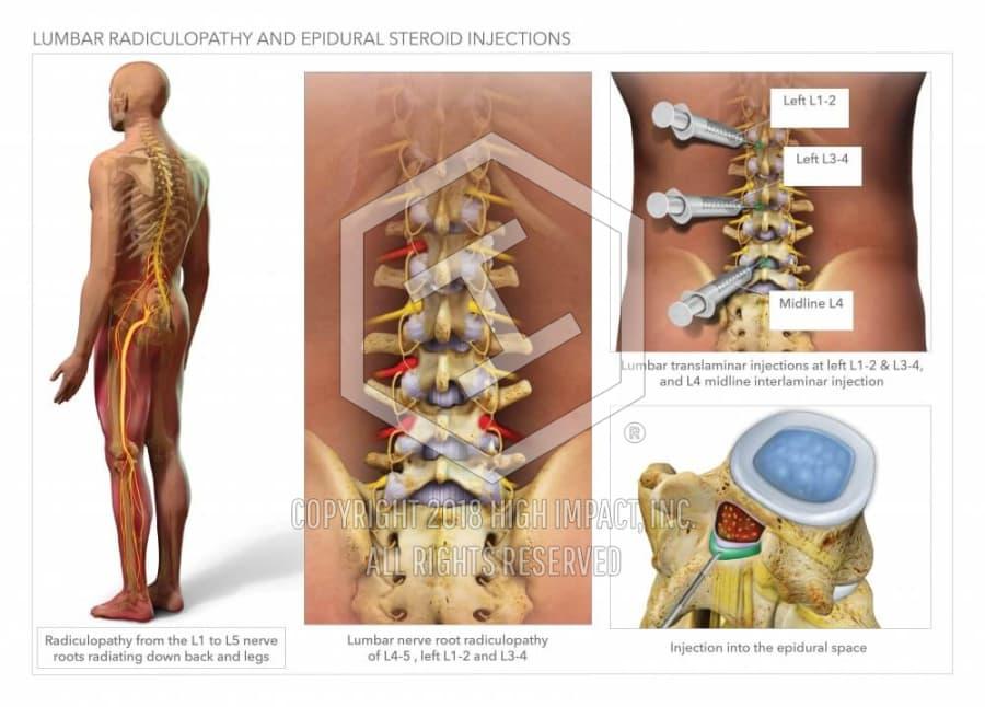 Lumbar Radiculopathy And Epidural Steroid Injections High Impact
