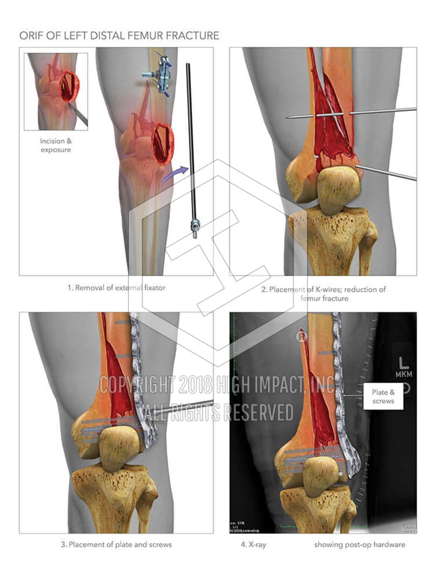 ORIF of Left Distal Femur Fracture | High Impact® Visual Litigation ...