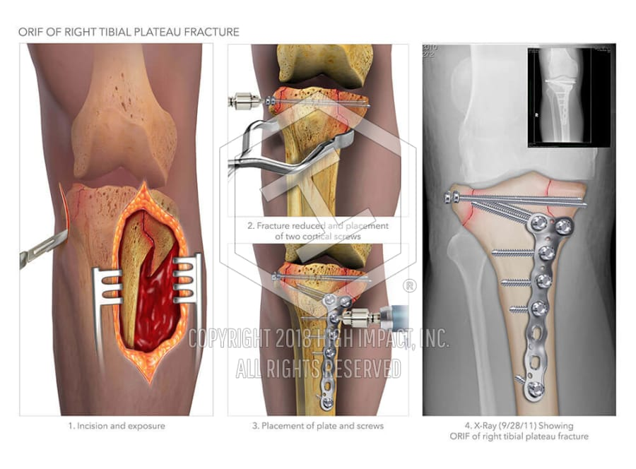 ORIF of Right Tibial Plateau Fracture   High Impact® Visual ...