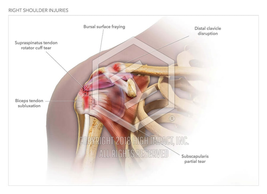 Right Shoulder Injuries High Impact Visual Litigation Strategies