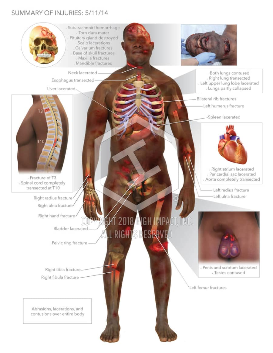 Summary of Full Body Injuries | High Impact® Visual Litigation ...