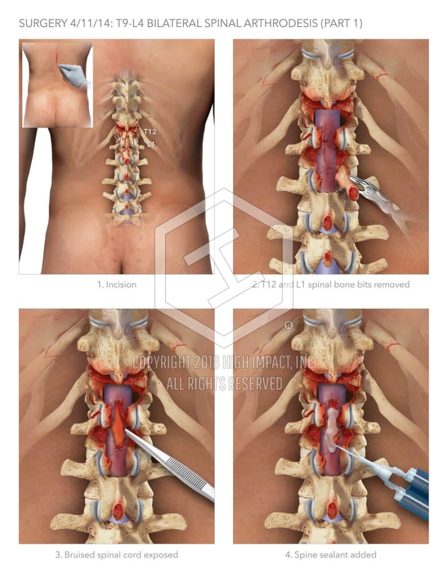 Spinal Arthrodesis High Impact Visual Litigation Strategies