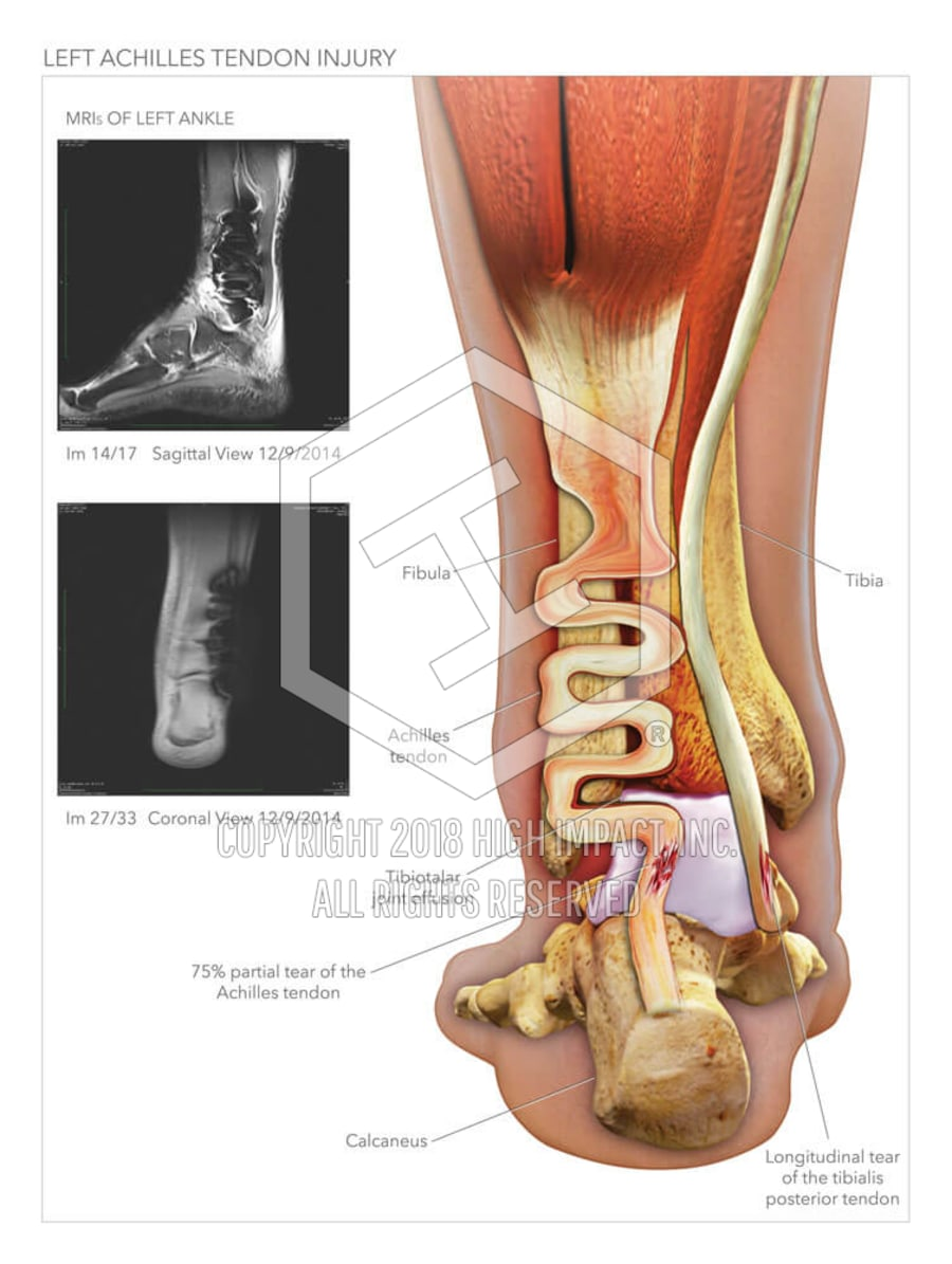 Achilles Tendon Injury   High Impact® Visual Litigation Strategies™