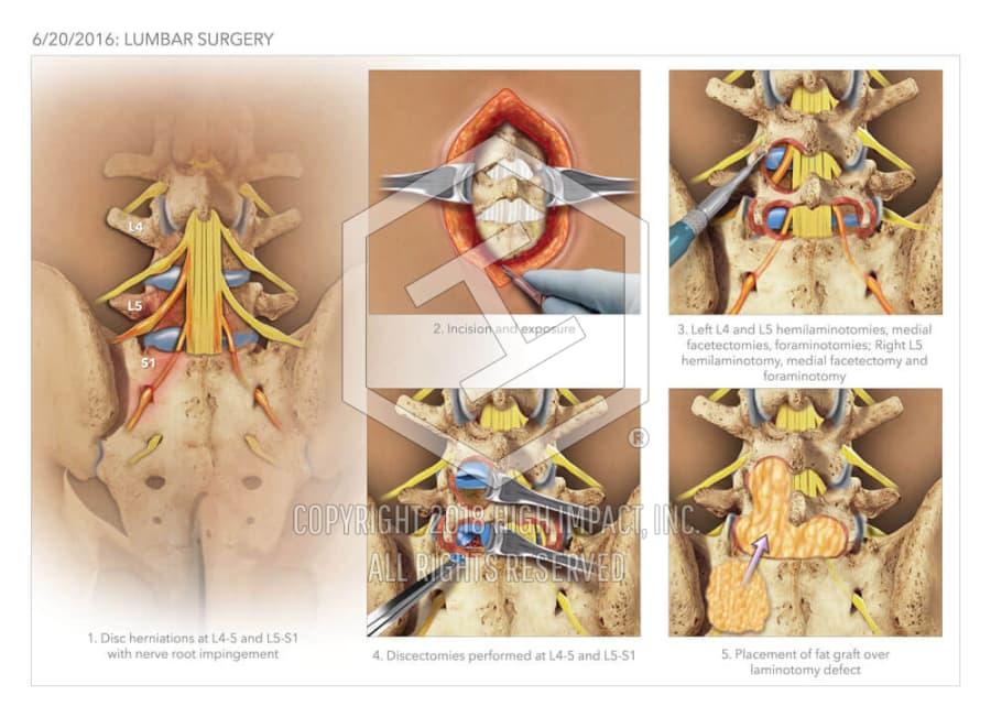 Lumbar Surgery High Impact Visual Litigation Strategies
