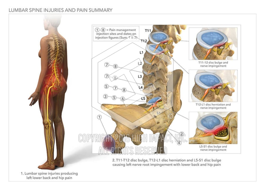 Lumbar Spine Injuries And Pain Summary High Impact Visual