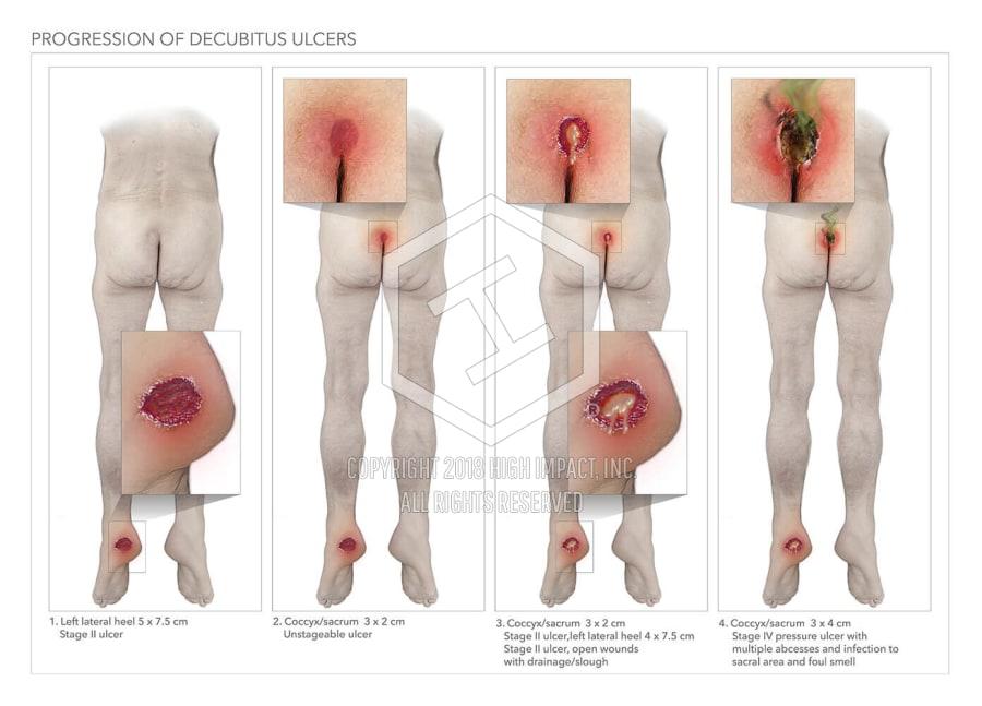 Progression Of Decubitus Ulcers High Impact Visual Litigation