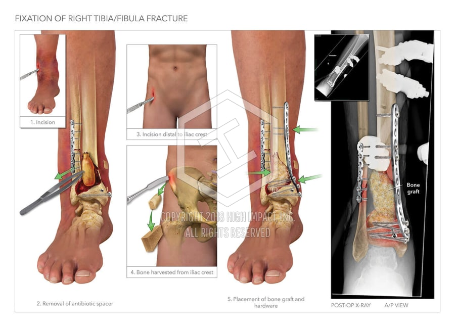 Fixation Of Right Tibia Fibula Fracture And Proposed Amputation