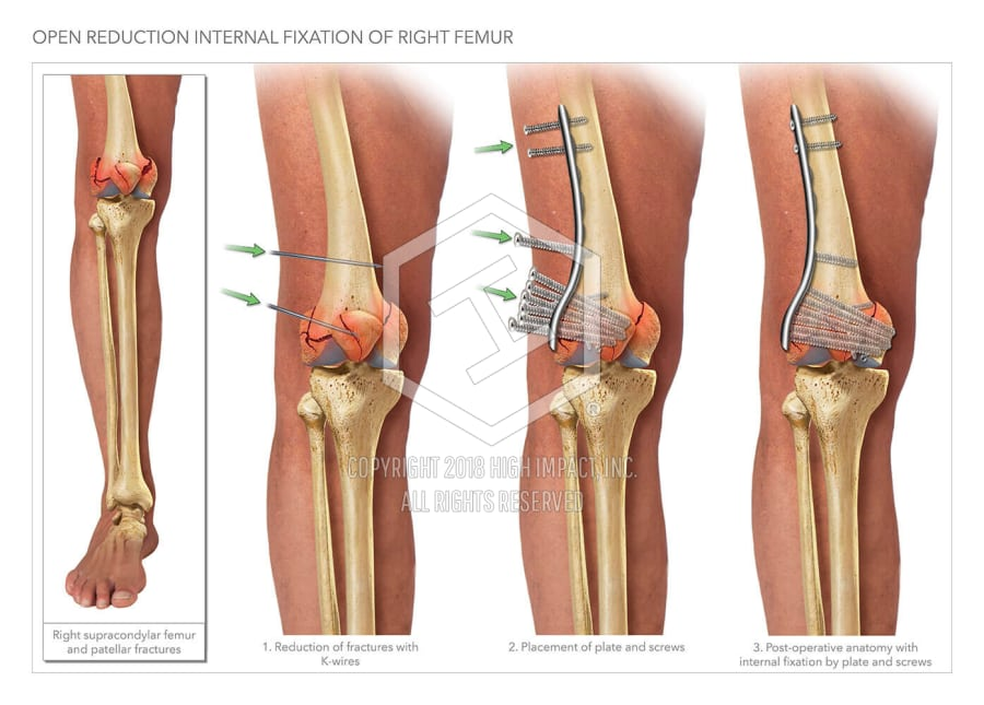 Open Reduction Internal Fixation of Right Femur | High Impact ...