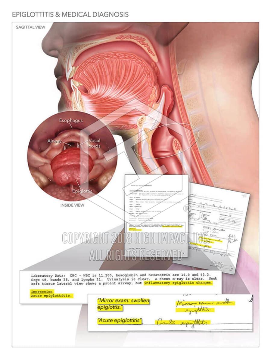 Epiglottitis Medical Diagnosis High Impact Visual Litigation
