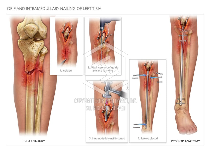 Orif and Intramedullary Nailing of Left Tibia   High Impact® Visual ...