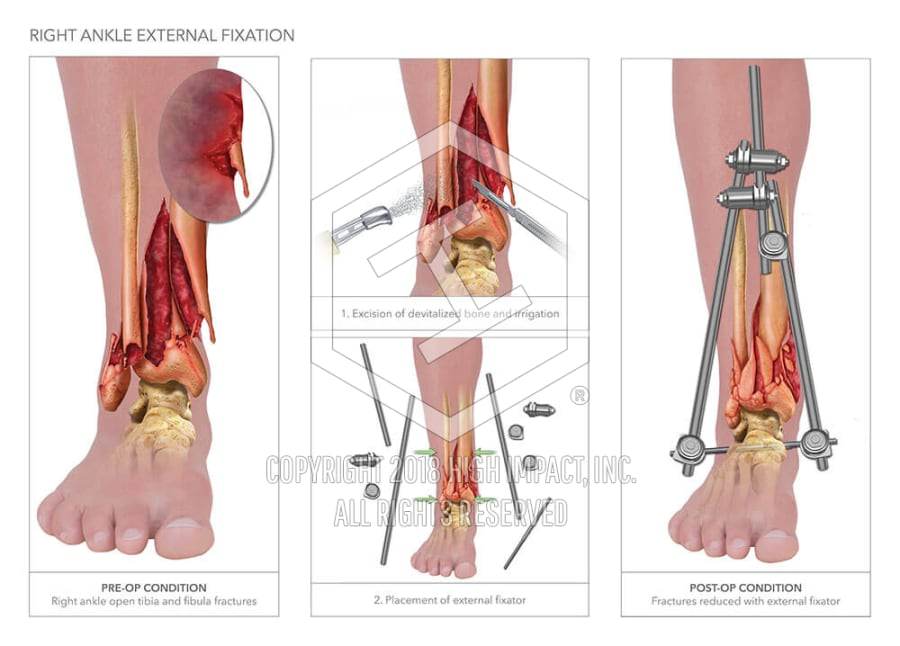 Right Ankle External Fixation High Impact Visual Litigation