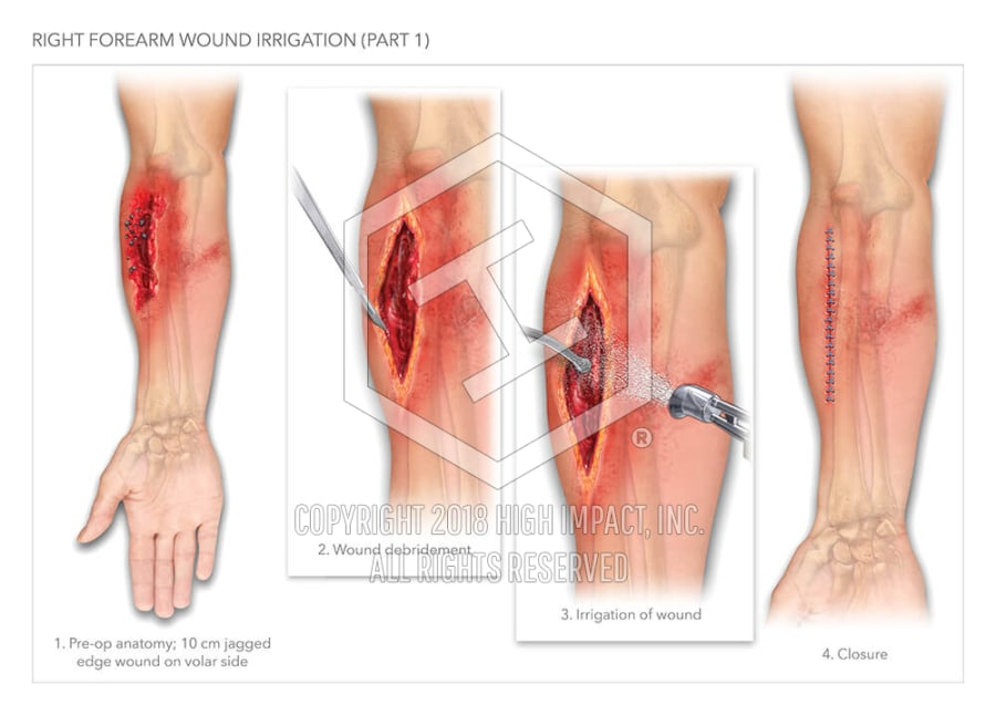 Right Forearm Wound Irrigation (Part 1) | High Impact® Visual ...