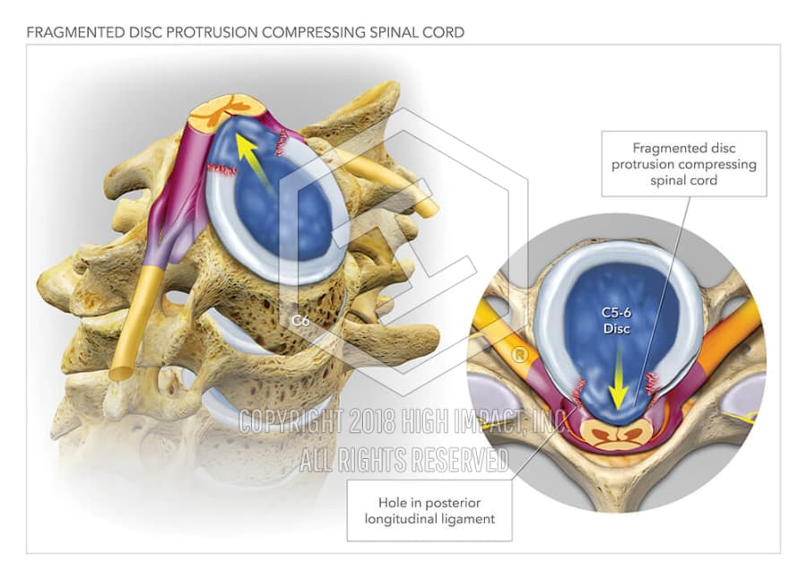 Fragmented Disc Protrusion Compressing Spinal Cord | High Impact ...