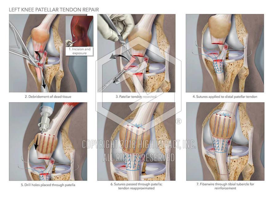 Left Knee Patellar Tendon Repair High Impact Visual Litigation