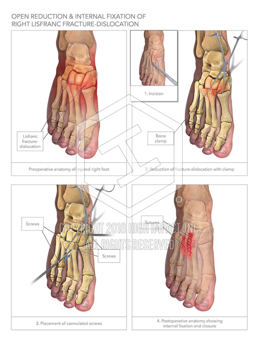 ORIF & Internal Fixation of Right Lisfranc Fracture-Dislocation ...