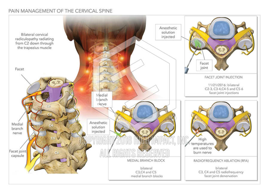 Pain Management Of The Cervical Spine High Impact Visual