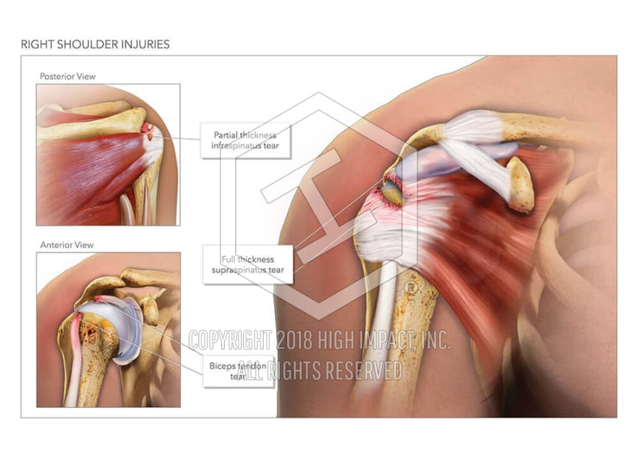 Right Shoulder Injuries High Impact Visual Litigation Strategies