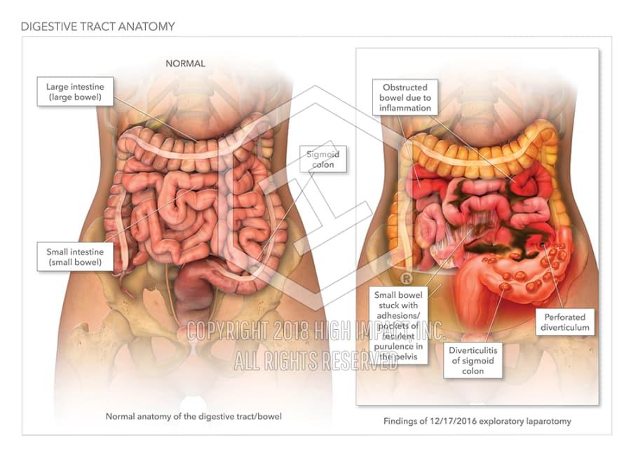 Digestive Tract Anatomy High Impact Visual Litigation Strategies