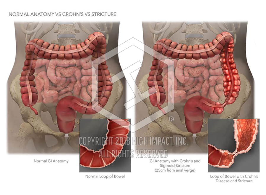 Normal Anatomy Vs Crohns Vs Stricture High Impact Visual