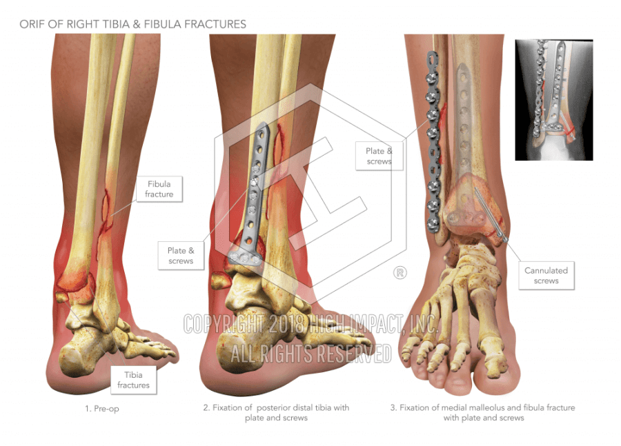 ORIF of Right Tibia and Fibula Fractures | High Impact® Visual ...