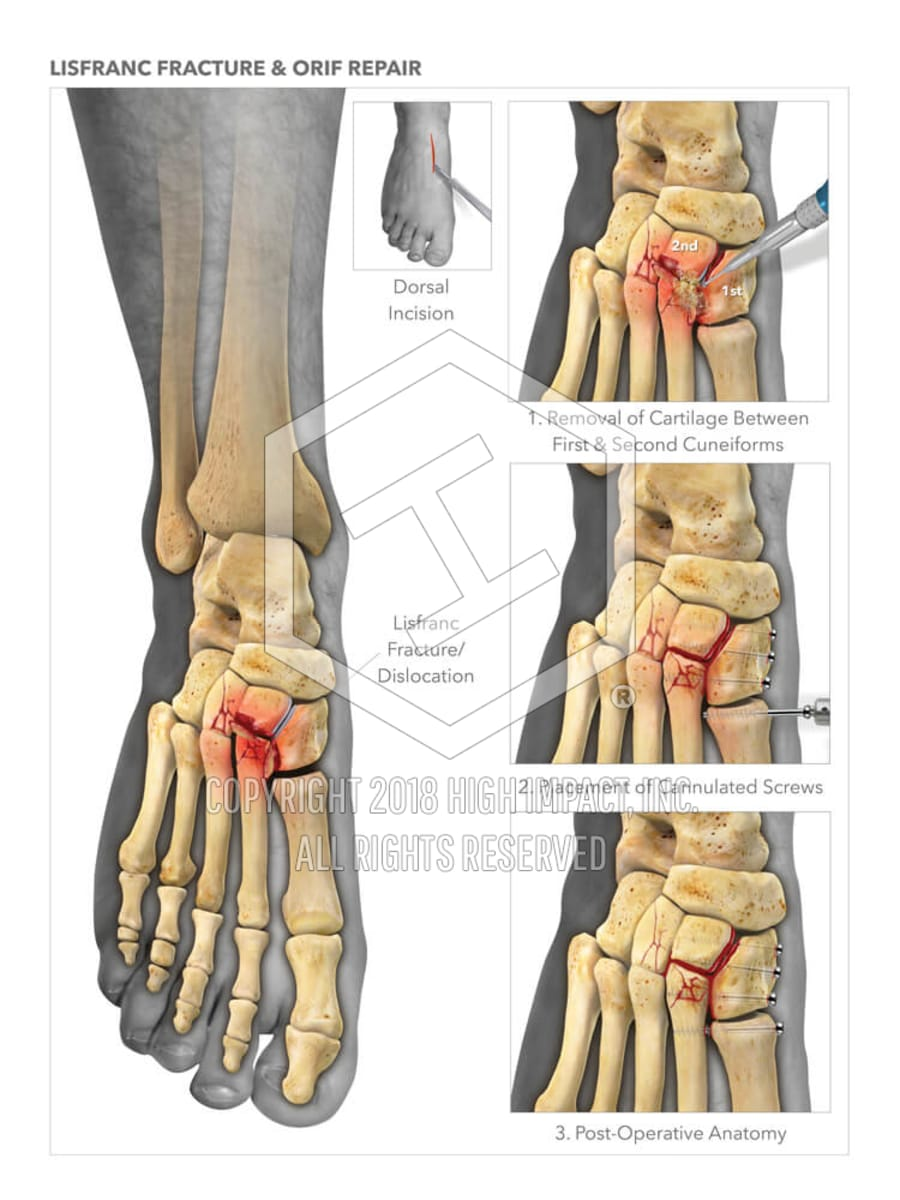 Lisfranc Fracture & Orif Repair | High Impact® Visual Litigation ...